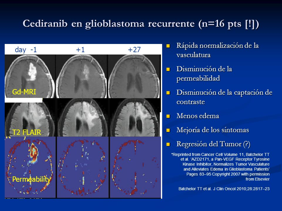 Cediranib en glioblastoma recurrente (n=16 pts [!])